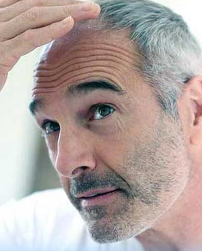 Things to Watch Before Hair Transplantation